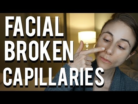 How to get rid of broken capillaries on the face| Dr Dray