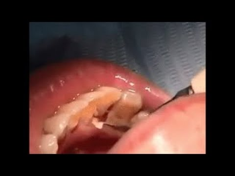 1 year no brushing, finally plaque cleaned - plaque calcite removal