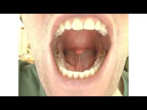 My Hypermobile Tongue & the Khechari Mudra