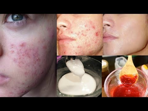 How to get rid of Acne & Pimple in Just 1 Day - Get Rid of Acne And Pimple Overnight