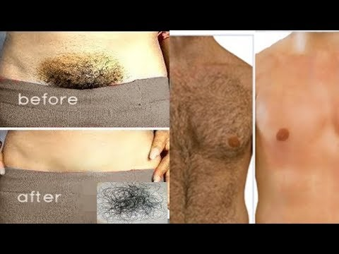 STOP SHAVING!! BEST WAY TO REMOVE PUBIC HAIR WITHOUT SHAVING! NO INGROWN HAIR, NO BOILS, No PAINS