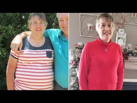 Woman Struggling to Lose Weight Learns She Has 20-Pound Tumor in Her Abdomen