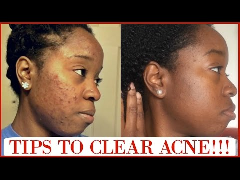 Tips For Clear Skin + What Caused My Acne + All About Retin-A!!! Q&A