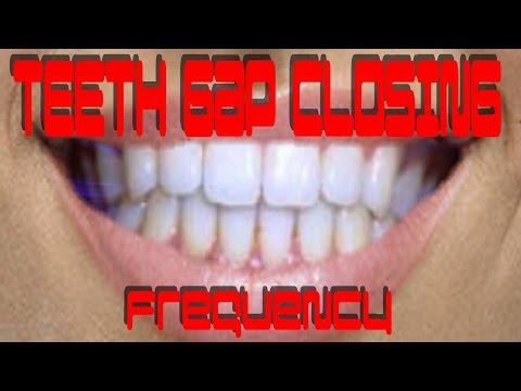 Teeth Gap Closing Frequency - Binaural Beat Natural Healing Subliminal