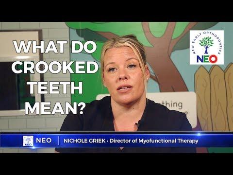 FAQ 2: What do crooked teeth mean