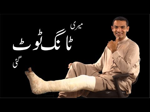I had my Leg Broken. Learn Great Positivity Lesson from my personal Stoy by M. Akmal The Skill Sets