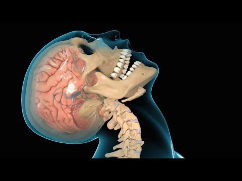 Concussion / Traumatic Brain Injury (TBI)