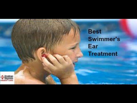 Best Swimmer's Ear Treatment
