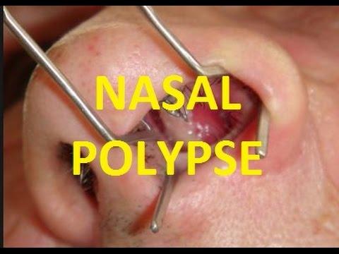 नाक के बढे हुए मांस (Nasal Polyps) का रामबाण इलाज