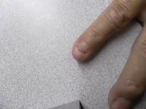 Finger Nail Time Lapse Growing