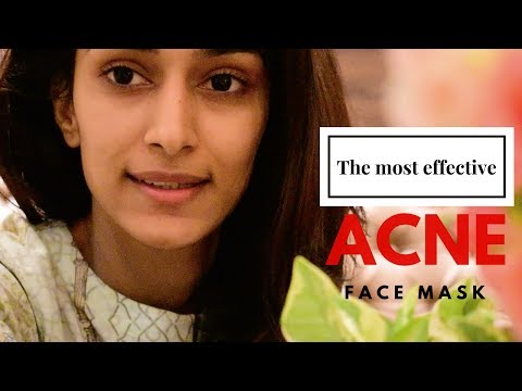 MOST EFFECTIVE ACNE FACE MASK  | ACNE | SKINCARE | ERICA FERNANDES