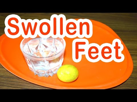 Home Remedy for Swollen Feet