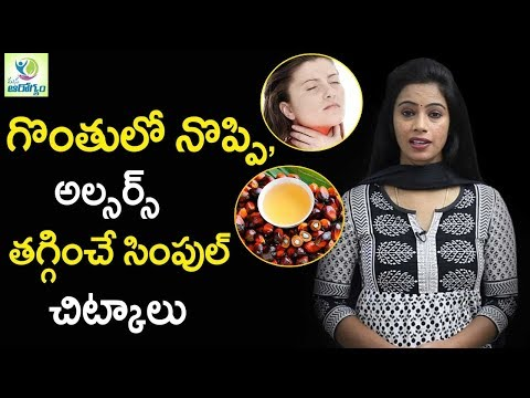 How To Get Rid Of Throat Infection & ulcers Naturally - Mana Arogyam Telugu Health Tips