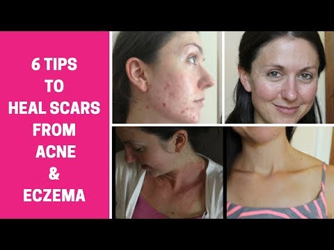 How to heal acne and eczema scars and get glowing skin