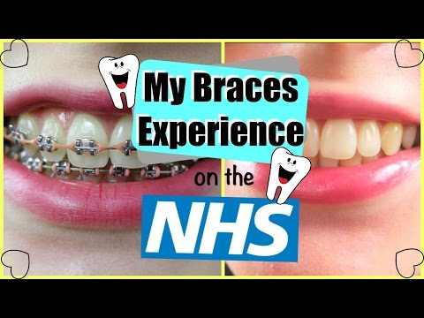 My Braces Experience on the NHS