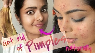 How To Get Rid Of Pimples Overnightreally Works Treat Acne At Home Na