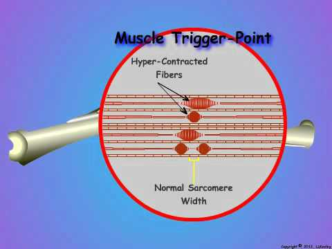 03_What is a Muscle Trigger Point?