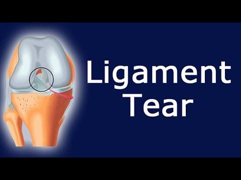 Ligament Tear