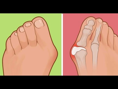 That Painful Bump On The Side Of Your Feet Here's How To Get Rid Of It  ✔