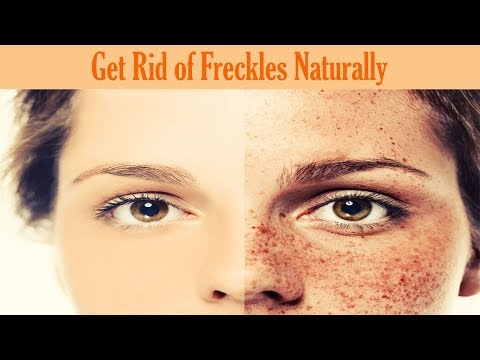 How to Get Rid of Freckles Naturally and Fast Overnight Permanently | Cure It Naturally