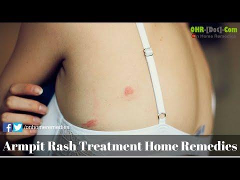 Armpit rash treatment home remedies