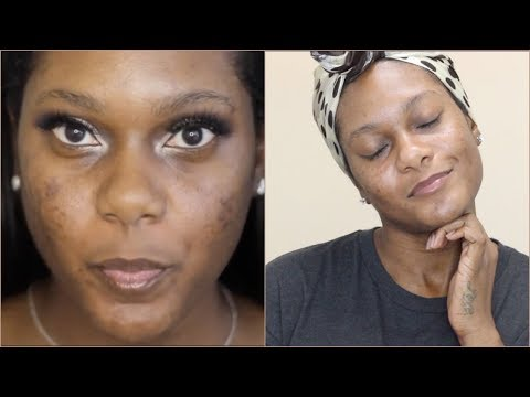 HOW I IMPROVED MY ACNE AND HYPERPIGMENTATION WOC| KIMALLURE