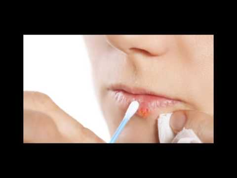 Canker Sores In Mouth Here Is How To Naturally Get Rid Of Them In A Matter Of Minutes Without Using