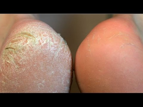 Home Remedies to Get Rid of Callus