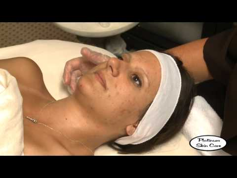 Salicylic Peel from Platinum Skin Care.mp4