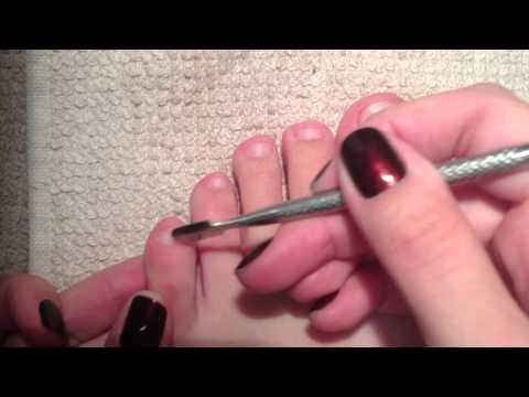 Trimming my toenails