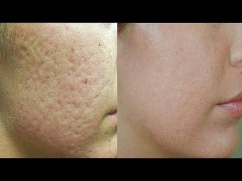 How to Fill Open Pores on Face Permanently in 3 Days | Get Smooth & Fairer skin in 3 days