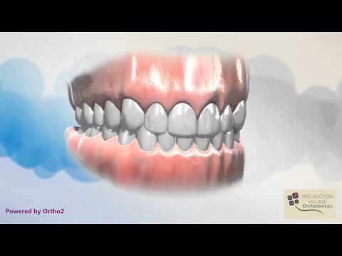 Intro Part 1 - Welcome to Orthodontics