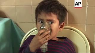 Download Forest fires affect western Venezuela Video