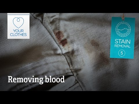 Stain removal: how to remove blood stains from clothes