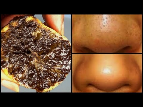 DO THIS TO REMOVE BLACKHEADS FROM YOUR NOSE | LEMON AND COFFEE |Khichi Beauty