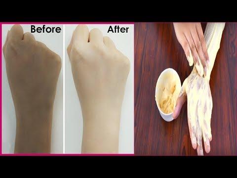 skin whitening home remedy 100 effective  in Hindi  | remove tan 100%  in Hindi