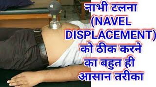 Navel Displacement Treatment/Navel Displacement Cure/Nabhi Talna/Navel Displacement