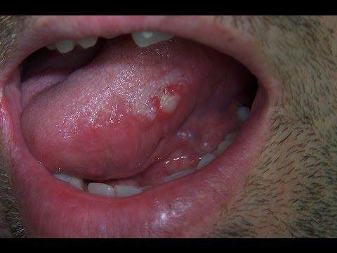 Home remedies for sore tounge