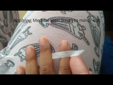 Applying Steri-Strips/Butterfly stitches to a child's finger cut