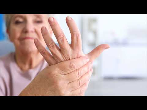 How To Know The Risk Factors Of Arthritis- How Your Hands Say About Arthritis