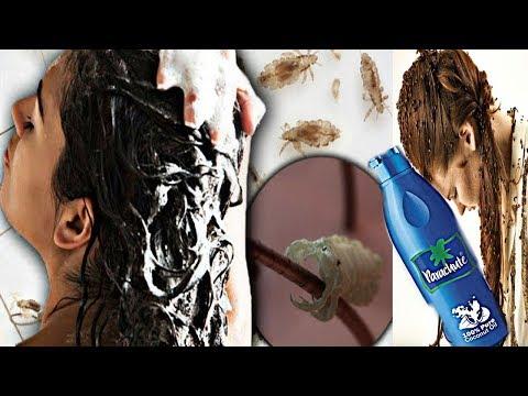 1 दिन में जूँ भगाने का नुख्सा// Lice Treatment In Hindi How To Remove Lice From Hair