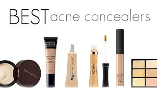 The Best Concealers For Acne Prone Skin