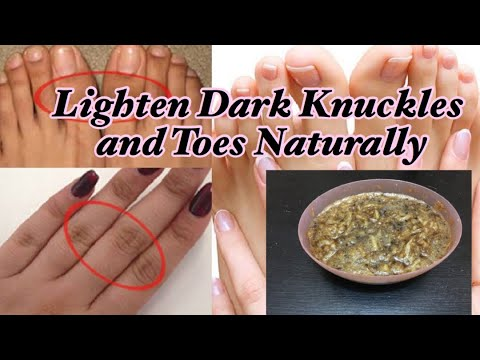 How To Lighten Dark Knuckles And Toes Naturally Fast in 10 Days