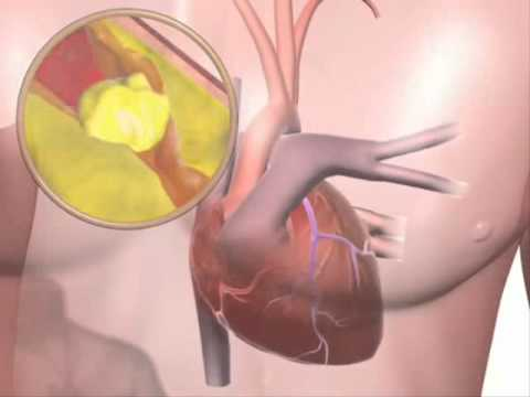 Symptoms & Effects of High Blood Pressure