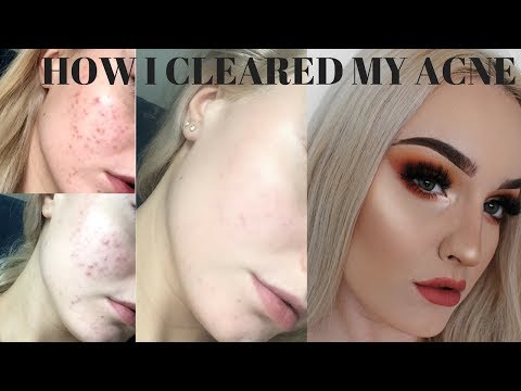 HOW I CLEARED MY ACNE *WITH PHOTOS*