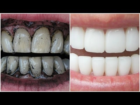 Whiten Teeth with Charcoal? - 1,000% Working!!! - Whiten Teeth at Home, FAST!