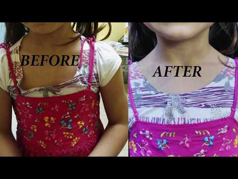 How to make a neckline smaller