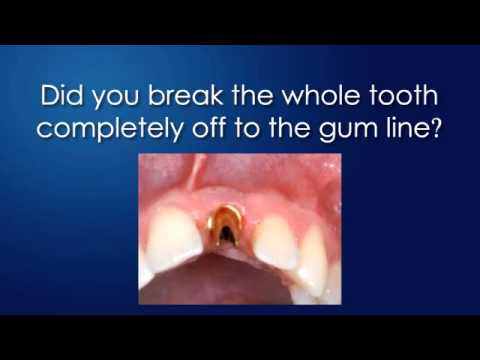 Lawrence Dentist On How To Fix A Broken Tooth On a Budget