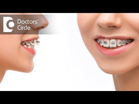 Do braces move your jaw back or forward? - Dr. Arundati Krishnaraj