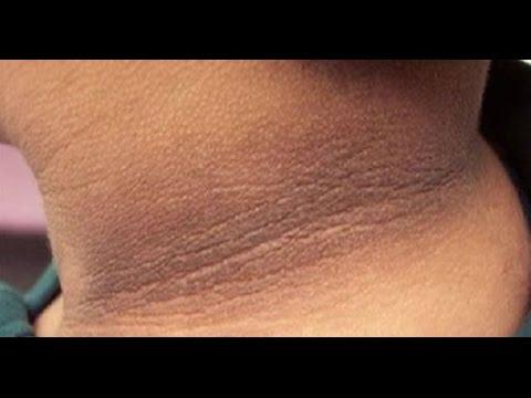 Tricks to Lighten Dark Skin Around Your Public Area